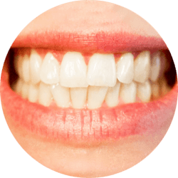bruxism sleep disorders